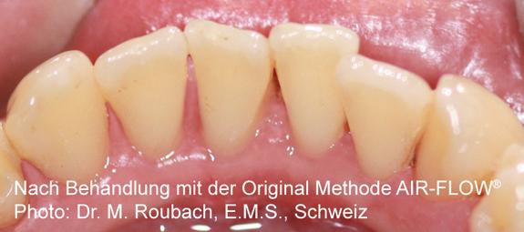 airflow-nachher